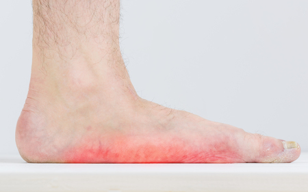 Photo pour Men with signs of flatfoot foot and nail fungus. Foot Diseases. Fungal disease. - image libre de droit