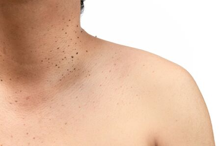 Foto de Closed up the skin tags or Seborrheic Keratosis on neck man isolated on white background.Health care concept. - Imagen libre de derechos