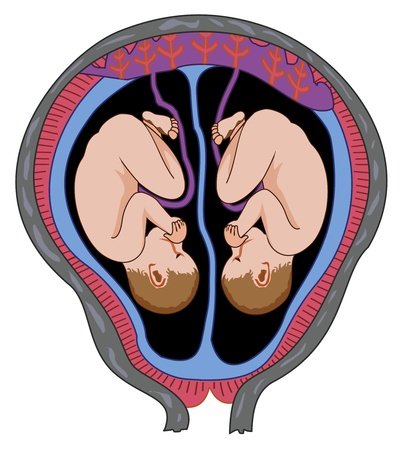 Illustration pour Twins in mother s womb - image libre de droit