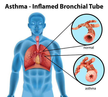 Illustration pour An image showing the asthma-inflamed bronchial tube on a white background - image libre de droit