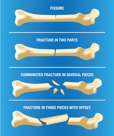 Anatomy various skeletal bone fractures. Ideal for medical and institutional materials