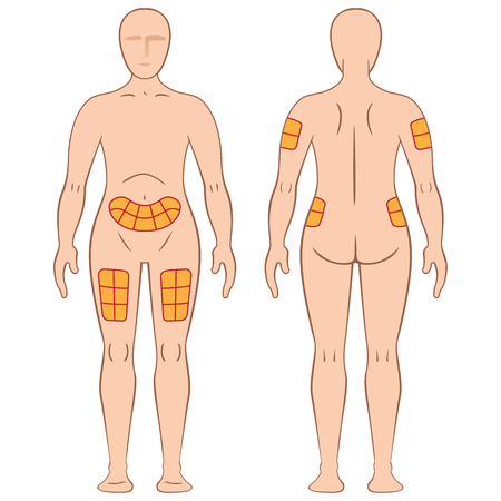 Guide for application of the caster injection into a person, back, thigh, shoulder, belly, and may be for the treatment of diabetes or sclerosis