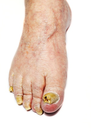 Fungus Infection on Nails of Man