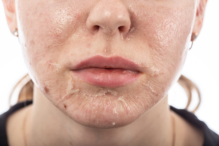 Photo pour female face with burned skin after chemical peeling - image libre de droit