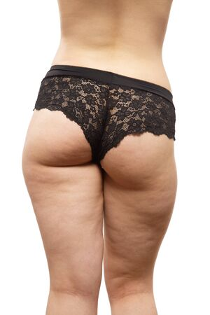 Photo for oversized female buttocks with cellulite on white background isolated - Royalty Free Image