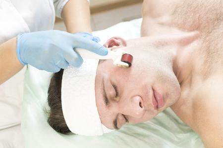 Photo pour Dermatology using derma roller. - image libre de droit