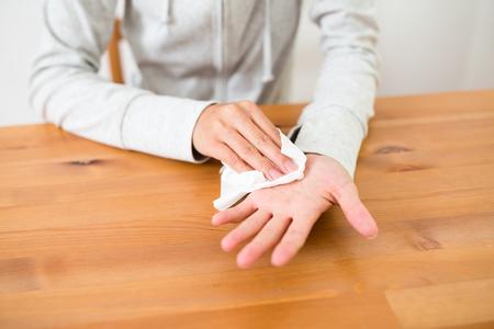 Woman suffer form palmar hyperhidrosis