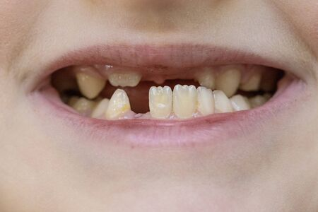 Photo pour Child's mouth close-up, tooth growth and lack thereof. The concept of baby tooth loss in children - image libre de droit