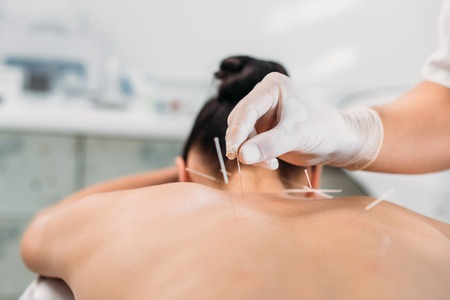 Photo pour cropped shot of cosmetologist putting needles on womans back during acupuncture therapy in spa salon - image libre de droit