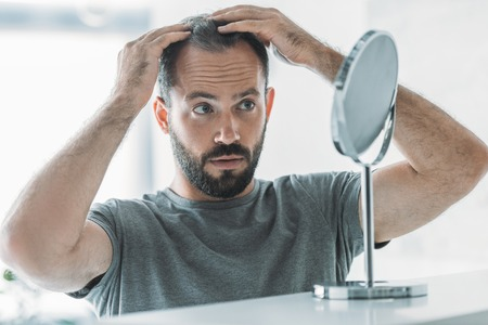 Foto de bearded mid adult man with alopecia looking at mirror, hair loss concept - Imagen libre de derechos