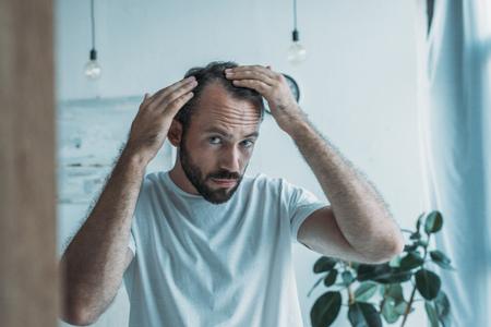 Foto de mid adult man with alopecia looking at mirror, hair loss concept - Imagen libre de derechos
