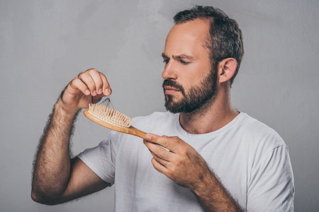 Foto de bearded middle aged man holding hairbrush, hair loss concept - Imagen libre de derechos