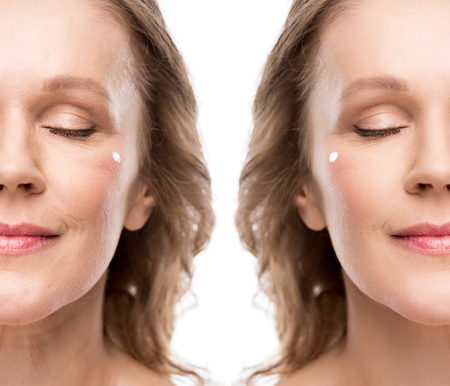Foto de Collage of mature woman with cosmetic cream on face before and after retouching isolated on white background - Imagen libre de derechos