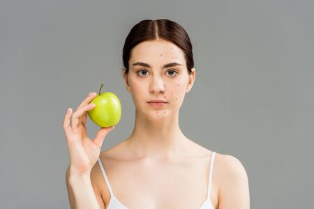 Foto de young woman with pimples on face holding green apple isolated on grey - Imagen libre de derechos