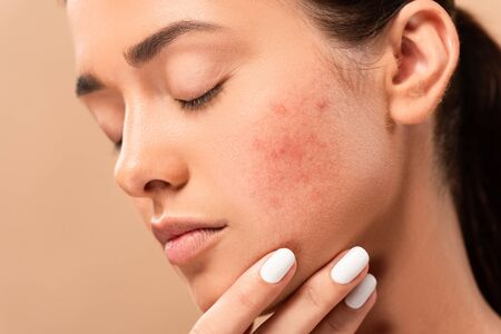 Photo pour young woman with closed eyes touching face with acne isolated on beige - image libre de droit