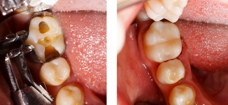 The aesthetic restoration of a lower molar tooth with composite resin.