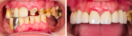 Patients teeth before and after dental treatment.
