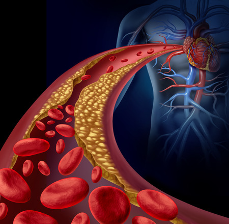 Clogged artery and atherosclerosis disease medical concept with a three dimensional human artery with blood cells that is blocked by plaque buildup of cholesterol