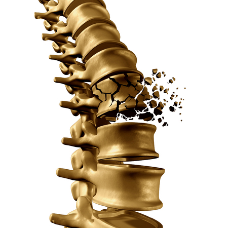 Spinal Fracture and traumatic vertebral injury medical concept as a human anatomy spinal column with a broken burst vertebra due to compression or other osteoporosis back disease on a white background.
