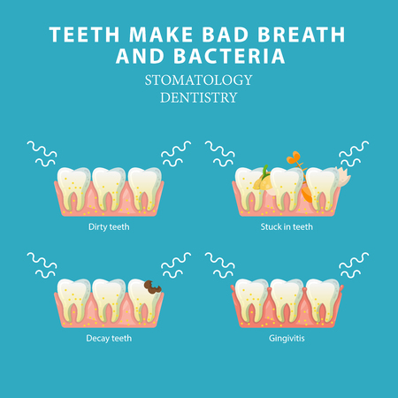 Illustrazione per Bad breath and bacteria. Stomatology dentistry vector concept - Immagini Royalty Free