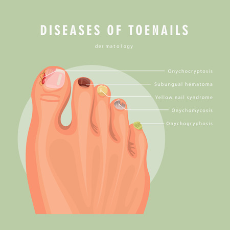 Illustration for Fungus toenail infection vector medicine poster. Colorful design. Detailed image with text. - Royalty Free Image