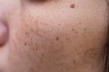 Foto de Woman 's problematic skin , acne scars ,oily skin and pore, dark spots and blackhead and whitehead on the face - Imagen libre de derechos