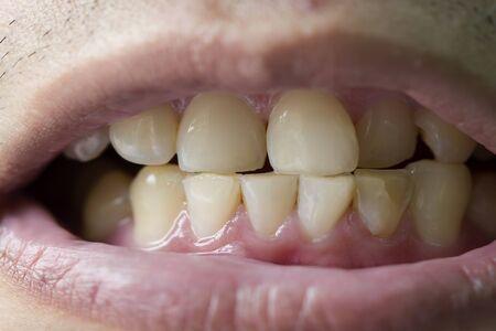 Photo pour patient before prophylactic treatment, dirty brown teeth - image libre de droit