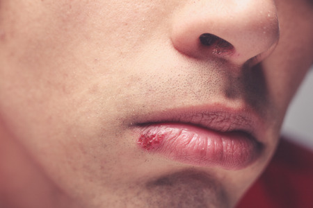 Young man with a cold sore on his lip