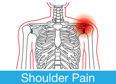 Outline of Body and bone which have shoulder pain from lifestyle. This is medical illustration