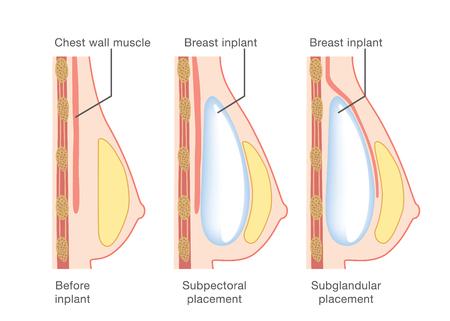 Illustration pour Breast implant insertion - image libre de droit