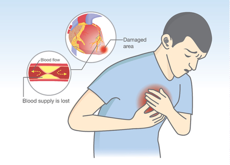 Illustration pour Man have early symptoms of heart attack. Blood flow get blocked by fatty which that is cause angina and heart attack. Healthcare and medical illustration. - image libre de droit