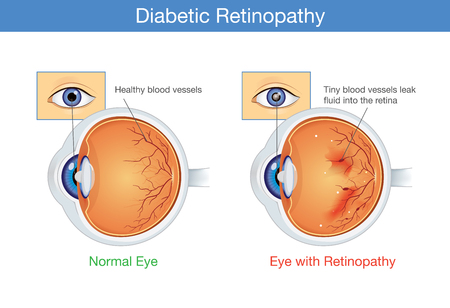 Illustration pour Anatomy of normal eye and Diabetic retinopathy in people who have diabetes, illustration about health and eyesight. - image libre de droit
