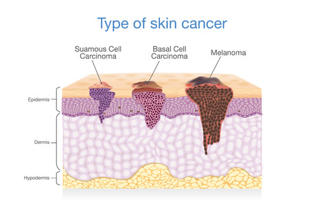 Illustration pour Skin layer have 3 Type of Cancer in one. Illustration about Medical diagram. - image libre de droit