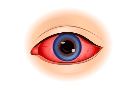 Illustration for Uveitis symptoms or Eye Inflammation isolated on white. Illustration about of vision problem. - Royalty Free Image