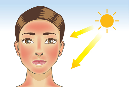 Illustration pour UV ray from sun made the redness appear on woman facial and neck skin. Illustration about danger of ultraviolet. - image libre de droit