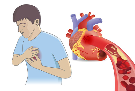 Photo pour Man have chest pain from blood cell can't flow into heart by fatty. Illustration about Coronary Artery Disease and medical concept. - image libre de droit