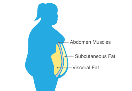 Illustration for Visceral fat and subcutaneous fat that accumulate around waistline of woman. Illustration about medical diagram. - Royalty Free Image