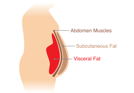 Illustration for Location of Visceral fat stored within the abdominal cavity. Illustration about medical diagram. - Royalty Free Image