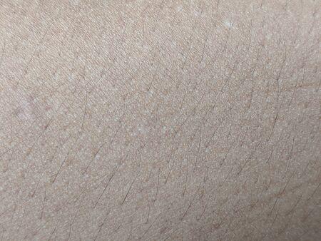 Photo pour Caucasian skin texture for background, dark brown human skin close up - image libre de droit