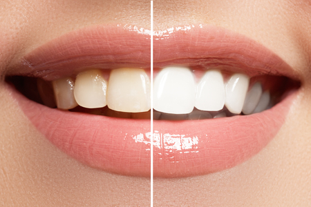 Photo for Macro happy woman's smile with healthy white teeth, bright pink lips make-up - Royalty Free Image