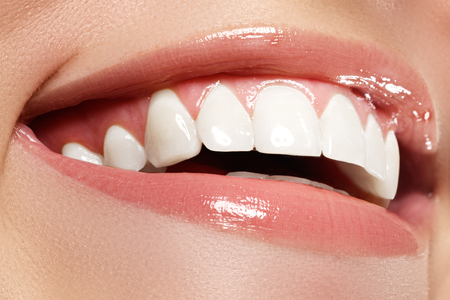 Foto de Perfect smile before and after bleaching. Dental care and whitening teeth - Imagen libre de derechos