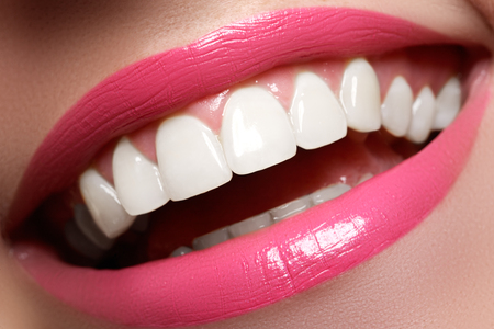 Foto de Perfect smile before and after bleaching. Dental care and whitening teeth. Smile with white healthy teeth. Healthy woman teeth and smile and sexy full pink lips - Imagen libre de derechos