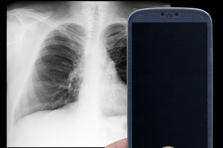 Smatrphone and male chest xray on black background. Idea for medicine xray app tricks games and others.