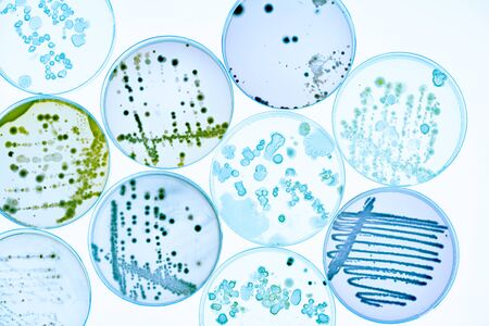 Photo pour Mixed of bacteria colonies and fungus in various petri dish - image libre de droit