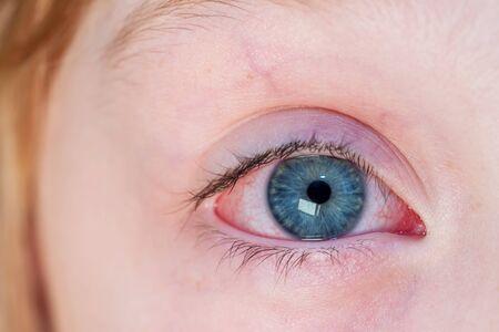 Photo pour Closeup of irritated red bloodshot eye - conjunctivitis. - image libre de droit