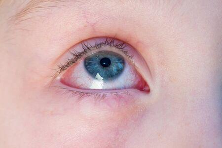 Photo pour Closeup of irritated red bloodshot eye - conjunctivitis - image libre de droit