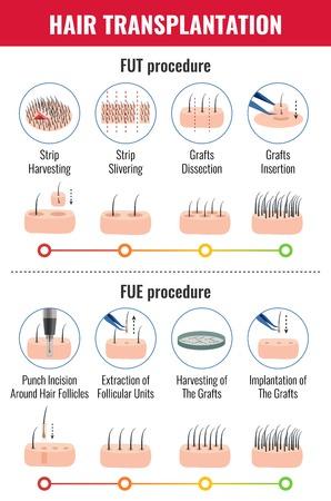 Illustration pour Methods of hair transplantation with stages of procedure infographics on white background vector illustration - image libre de droit