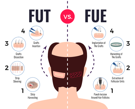Illustration for Methods of hair transplantation fut vs fue poster with infographic elements on white background vector illustration - Royalty Free Image