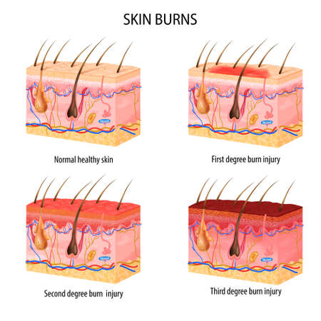 Illustration pour Realistic set of normal and three degree of burns skin structure isolated on white background vector illustration - image libre de droit
