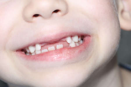 Photo pour The boy smiles, his milk teeth are visible. Loss of milk teeth. The boy has no upper central teeth. The loss of milk teeth in children. - image libre de droit